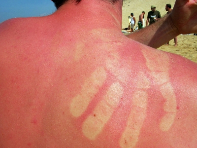 Hier schmerzt schon das Hinschauen. Gegen einen Sonnenbrand bei Kindern und Erwachsenen hilft vorbeugen: Eincremen und entsprechend anziehen. Outdoor Hersteller bieten auch UV Strahlen filternden Kinderkleidung an. Foto: William Veder  / pixelio.de